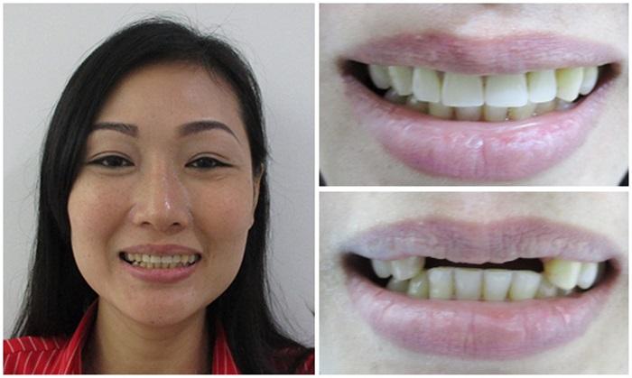 trước và sau điều trị tại nha khoa Kim 10