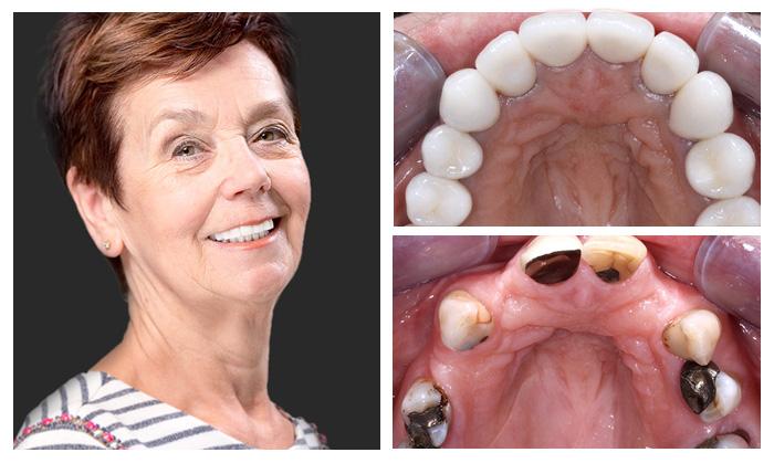 trước và sau điều trị tại nha khoa Kim 9