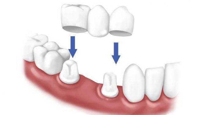 Trồng răng hàm dưới -2