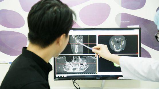 Giá làm răng implant tại Nha Khoa KIM bao nhiêu tiền?