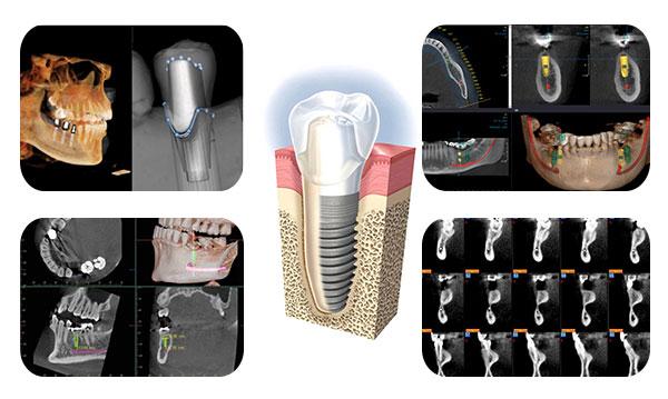 Thời gian trồng răng Implant bao lâu thì hoàn thành -2