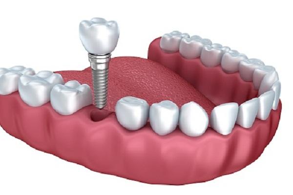 Bệnh viện trồng răng implant 1