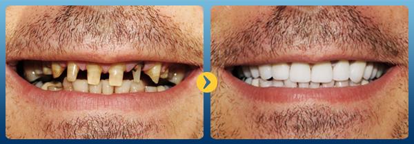 Bọc sứ răng cửa 6