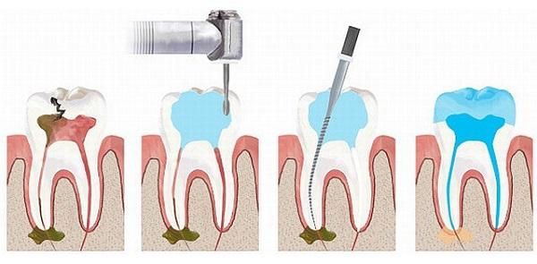 địa chỉ điều trị tủy răng