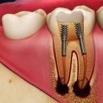 Răng bị viêm tủy - Nguyên nhân và cách điều trị an toàn, hiệu quả