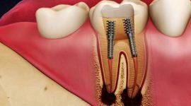 Răng bị viêm tủy – Nguyên nhân và cách điều trị an toàn, hiệu quả