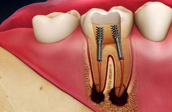 Răng bị viêm tủy – Nguyên nhân và cách điều trị