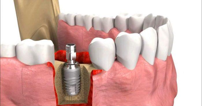 Trồng răng giả implant có giá bao nhiêu tiền thưa bác sỹ? 1