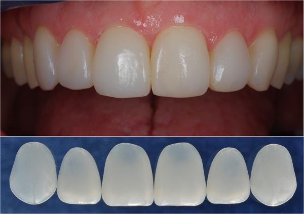 Kết quả hình ảnh cho Tránh làm tổn thương chéo vì nó răng implant