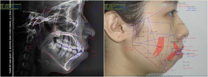 Giải phẫu hàm hô móm vẩu bằng kỹ thuật mới 4