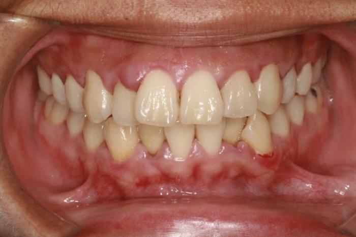 Cạo vôi răng đau không, có ảnh hưởng gì không? 2