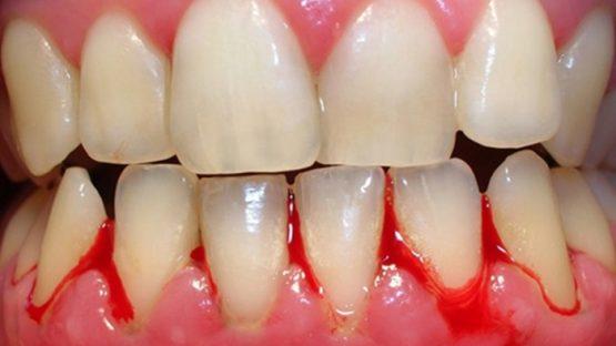 Bệnh viêm nướu răng và phương pháp điều trị
