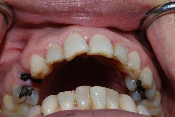 Địa chỉ điều trị tủy răng nào uy tín, hiệu quả tốt nhất?