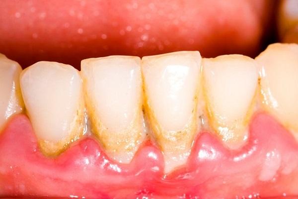 cao răng - 2