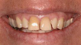 Răng toàn sứ – Đỉnh cao của công nghệ phục hình răng thẩm mỹ