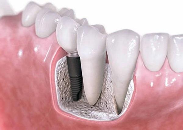 Công nghệ trồng răng Implant Fast 3D