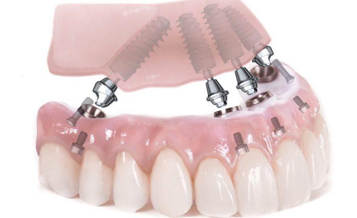 Giá trồng răng implant bao nhiêu tiền là giá chuẩn, đảm bảo hiệu quả? 2