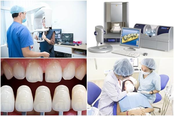 Bọc sứ răng cửa 2