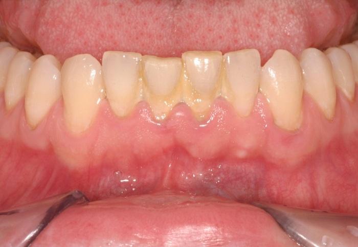 Cách làm sạch mảng bám trên răng ĐƠN GIẢN, cực HIỆU QUẢ 1