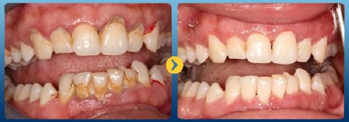 Cạo vôi răng - Biện pháp đơn giản để bảo vệ sức khỏe răng miệng 3