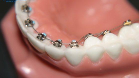 Niềng răng mắc cài lưỡi – Phương pháp chỉnh nha thẩm mỹ cao