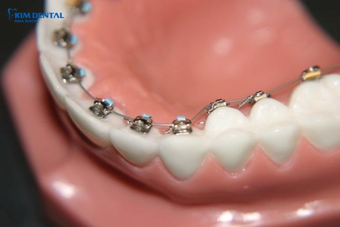 Niềng răng mắc cài lưỡi - Phương pháp chỉnh nha thẩm mỹ cao 1