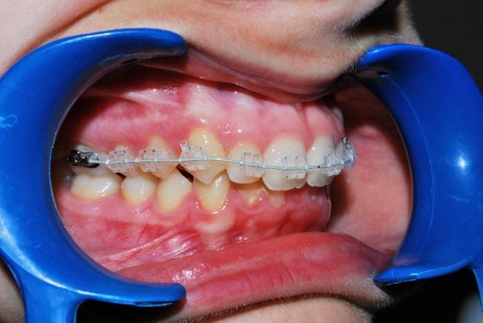 Niềng răng mắc cài pha lê - Tự tin chỉnh nha mà không sợ xấu 2