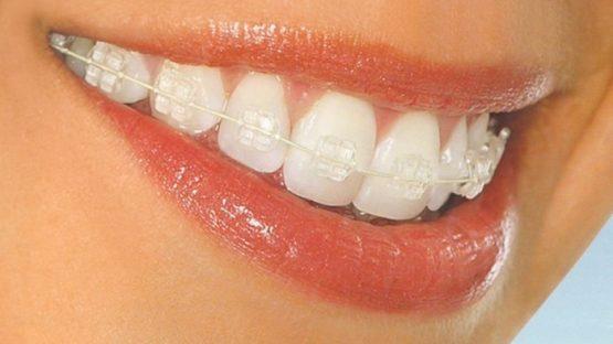 Niềng răng mắc cài pha lê – Tự tin chỉnh nha mà không sợ xấu