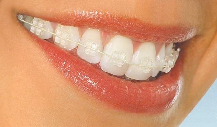 Niềng răng mắc cài pha lê - Tự tin chỉnh nha mà không sợ xấu 1