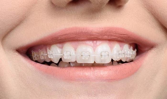 Niềng răng sứ giá bao nhiêu tiền? Chi phí điều trị có đắt không? 2