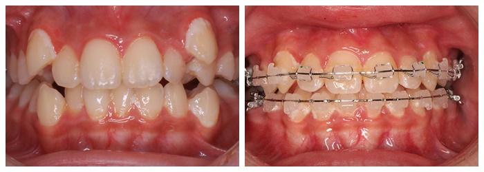 Niềng răng mắc cài sứ dây trong - Giải pháp chỉnh nha thẩm mỹ cao 5