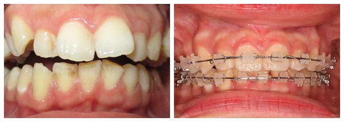 Niềng răng mắc cài sứ dây trong - Giải pháp chỉnh nha thẩm mỹ cao 6