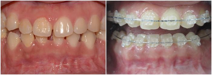 Niềng răng mắc cài sứ dây trong - Giải pháp chỉnh nha thẩm mỹ cao 7
