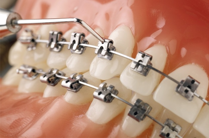 Niềng răng mắc cài tự buộc - Giải pháp chỉnh nha hiệu quả cao 2