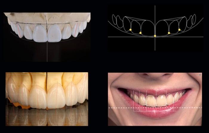 Cắt lợi làm dài răng chữa cười hở lợi nhanh chóng, không đau 4