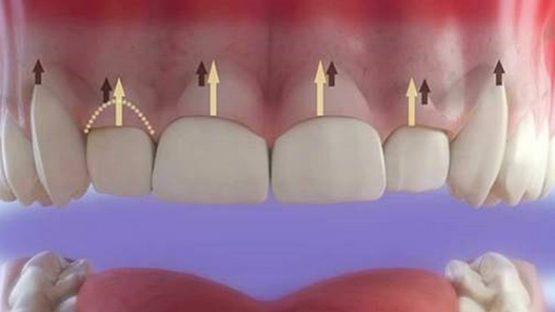 Cắt lợi làm dài răng chữa cười hở lợi nhanh chóng, không đau