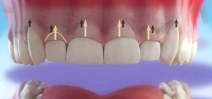 Cắt lợi làm dài răng chữa cười hở lợi nhanh chóng, không đau 1