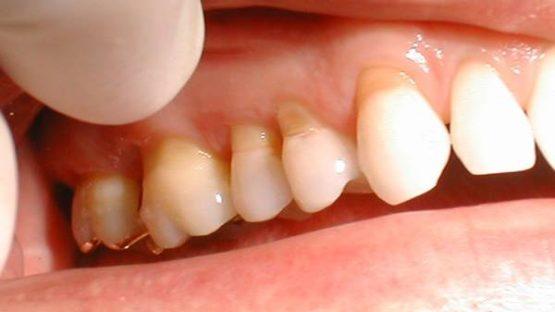 Hở chân răng – Tìm hiểu nguyên nhân và phương pháp điều trị