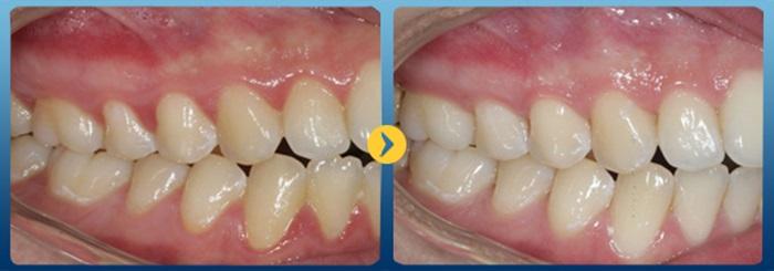 hở chân răng - 3