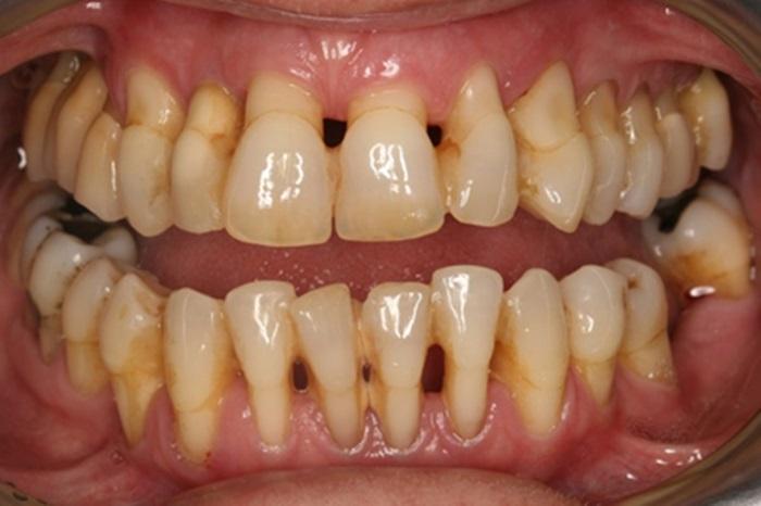 Hở chân răng - Tìm hiểu nguyên nhân và phương pháp điều trị 1