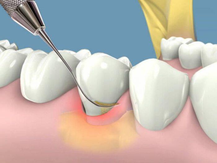 Chân răng bị đen – Nguyên nhân do đâu, làm sao loại bỏ vết đen hiệu quả? 3