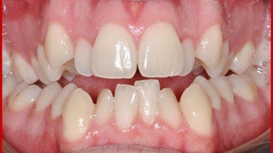 Răng bị lòi sỉ là gì? Điều trị bằng cách nào hiệu quả nhất?
