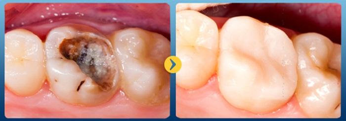 Sâu răng đau nhức phải điều trị thế nào nhanh và hiệu quả? 3