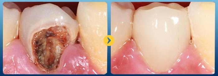 Trám răng composite - Giải pháp tái tạo răng Nhanh & An toàn 3