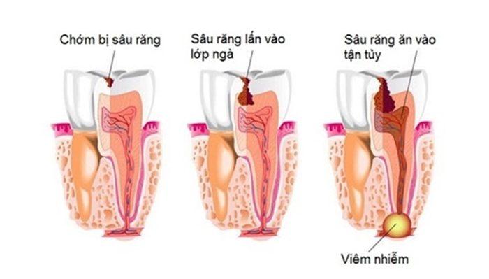 Răng bị thủng lỗ do sâu răng - Điều trị bằng cách nào tốt nhất? 2