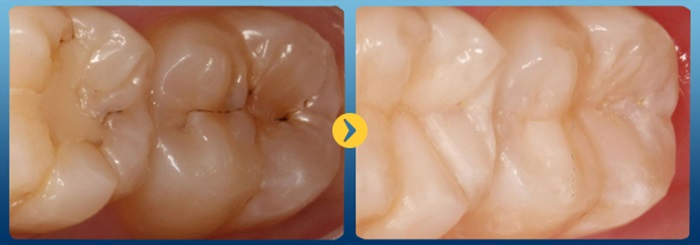 trám men răng - điều trị răng lồi lõm, bị đen