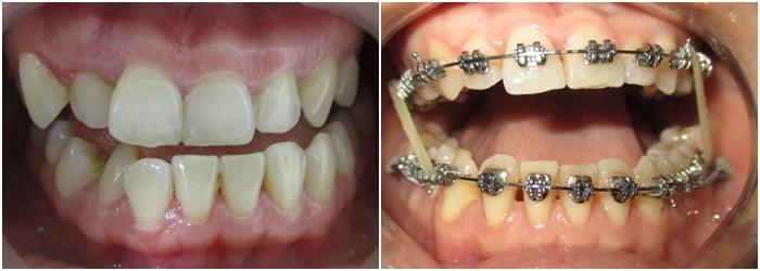 niềng răng giả inox - 1