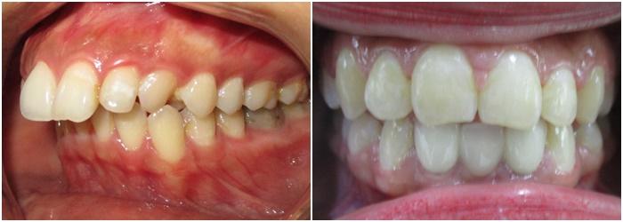 Cách chữa răng hô - 3