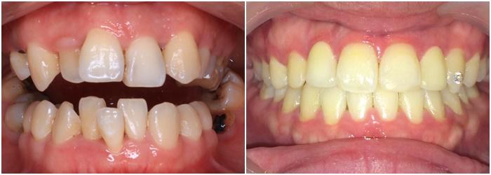 Liệu trình niềng răng trong suốt mất bao lâu thì kết thúc việc điều trị? 3