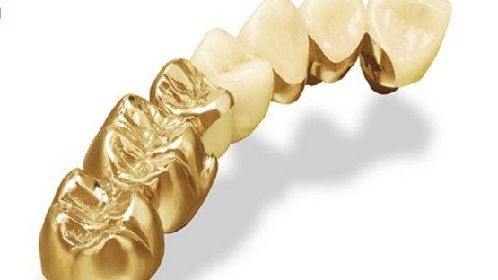 Răng sứ quý kim – Đỉnh cao của răng sứ phục hình